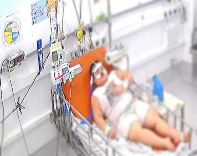 5 trẻ béo phì mắc COVID-19 nặng được điều trị thành công - Ảnh 1.